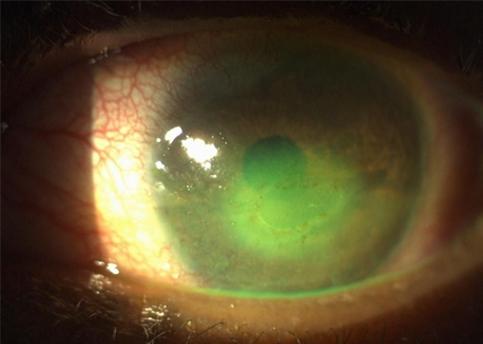 EyeDrBallim-Ophthalmologist-Eye-Specialist-footer-logo