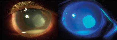 EyeDrBallim-Ophthalmologist-Eye-Specialist-Durban-Treatment-of Corneal ulcer