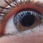 EyeDrBallim-Ophthalmologist-Eye-Specialist-Services-Glaucoma